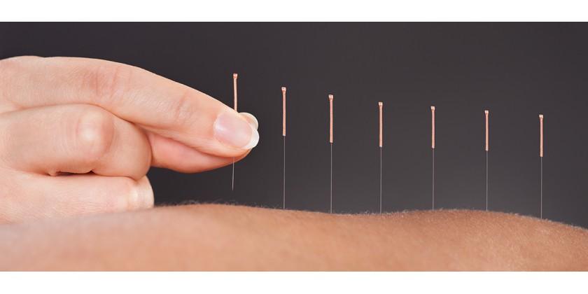 acupuntura-adeslas